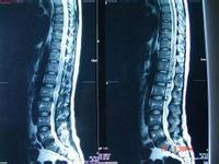 大脑新术《走进科学》第四集:脊髓脊柱一起治