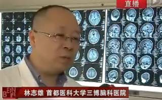 孩子经常头晕,需警惕脑肿瘤<
