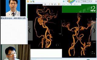 颅内外血管搭桥治疗复杂颈内动脉动脉瘤