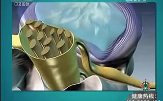 椎管内囊肿病例:藏在脊柱中的恶魔
