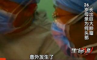 颅骨增生合并巨大脑膜瘤病例:美丽的谎言