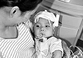 八月男婴 九次手术