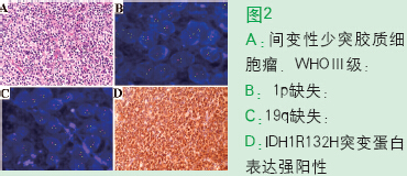 少突胶质细胞起源肿瘤及少突