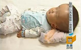 脑积水病例:大头娃娃 寻求帮助