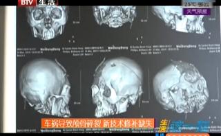 颅脑损伤:车祸导致头骨破裂 新技术修补缺失