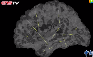 精准深入大脑深处 创伤小效率高,确定癫痫病灶
