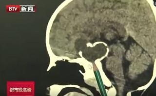 颅咽管瘤:3岁男童个子矮 原是肿瘤影响生长