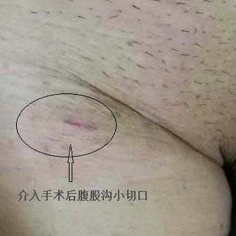微创、术后不留疤痕