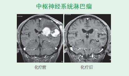 博医篇 脑肿瘤类疾病的治疗