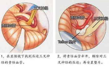 三叉神经痛手术示意图