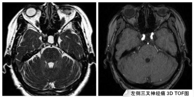 左侧三叉神经痛 3D TOF图