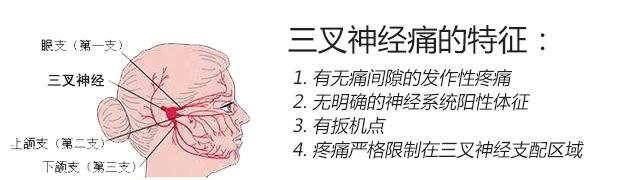 三叉神经痛的确定诊断应具备下述4个特征