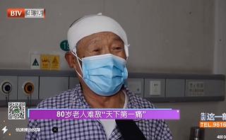 """80岁老人难敌""""天下第一疼""""三叉神经痛"""