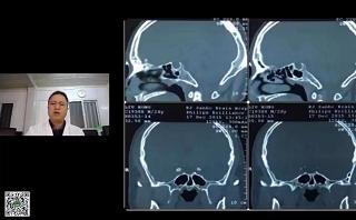 内镜经鼻治疗垂体瘤