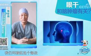 三博脑科张宏伟:长期眼干可能不只是眼病,当心病因在脑肿瘤